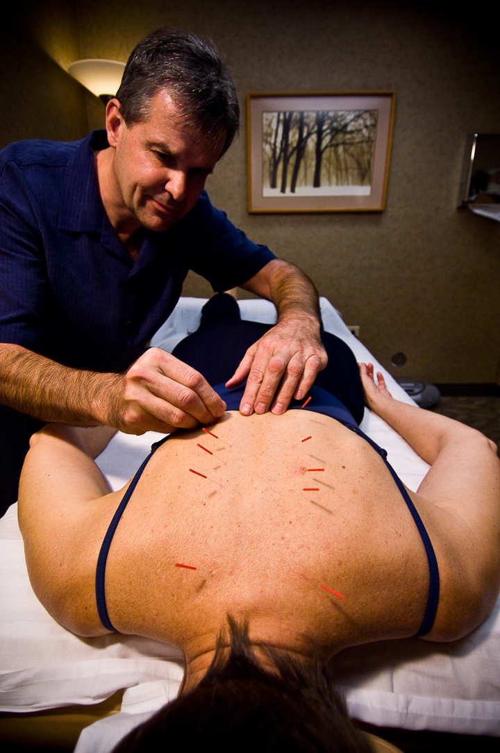 David Vavrinchik, LAcperforming acupuncture
