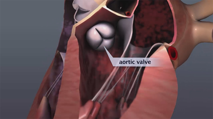 aortic valve animation