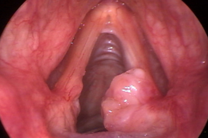 Throat cancer polyps before and after gallery northshore