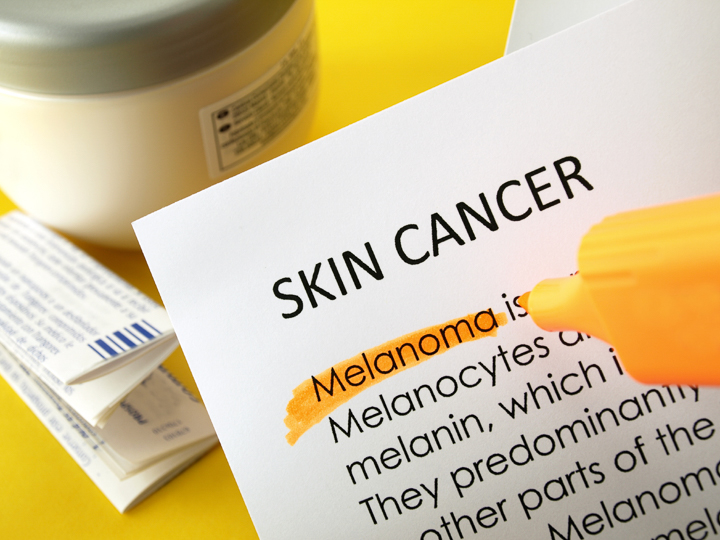 Skin Cancer Blog