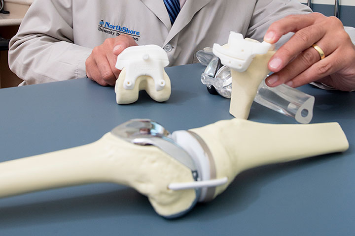 Doctor with joint replacement models