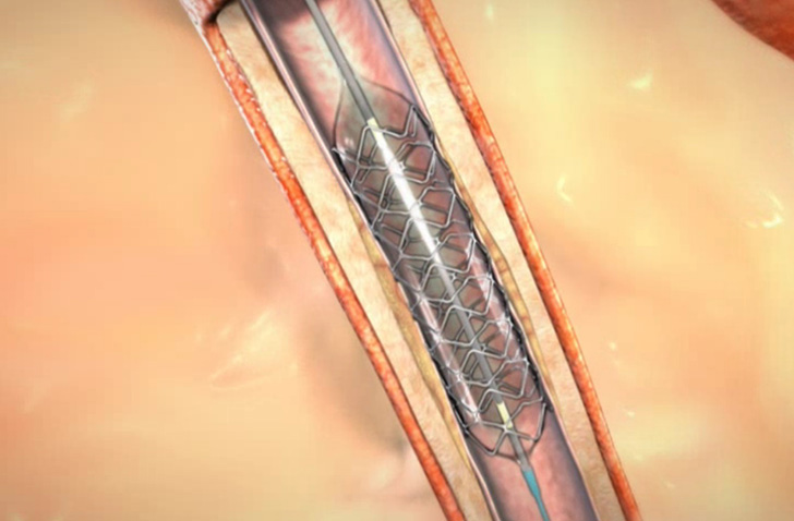 Angioplasty and Stenting Animation