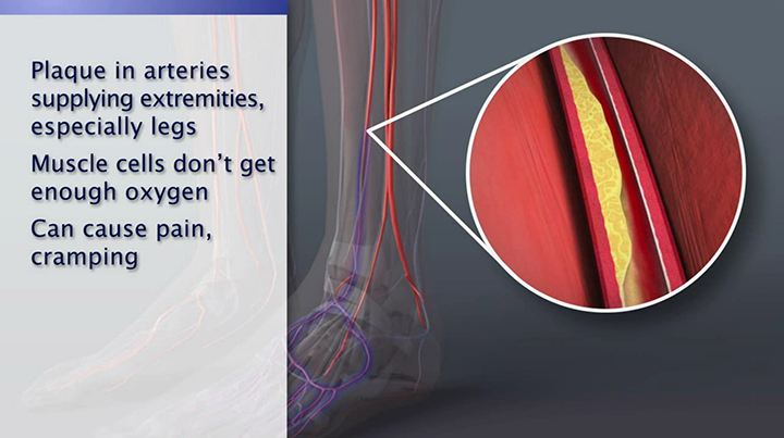 Peripheral Artery Disease Animation